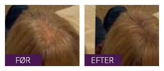 behandling af tyndt hår